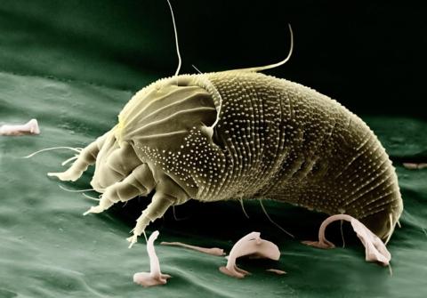bakterie a roztoci v posteli